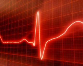 ISCRIZIONI CHIUSE – CAVALCANDO L'ONDA – L'infermiere e la conoscenza dell'elettrocardiogramma